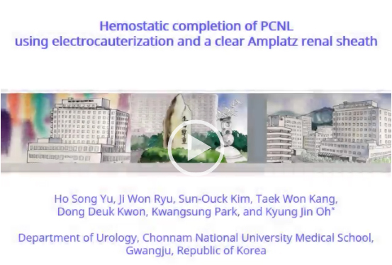 Hemostatic completion of percutaneous nephrolithotomy using electrocauterization and a clear amplatz renal sheath