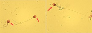 Figure 1 - Spermatozoa found after microcentrifugation technique (2000g for 15 minutes), stained by nuclear fast red and picroindigocarmine (described as NF-PICS or Christmas Tree stain) in an azoospermic man. We observed clear slides obtained with sperm integrity preserved, without cellular debris.