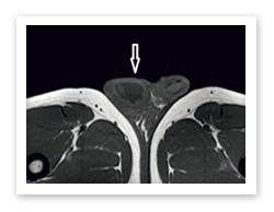 radiology_5_2016