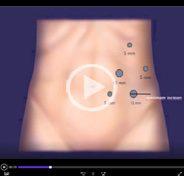 Laparoscopic partial nephrectomy for multiple (four) tumors