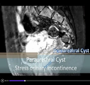 Surgical management of female paraurethral cyst with concomitant stress urinary incontinence