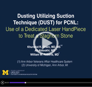 Dusting utilizing suction technique (DUST) for percutaneous nephrolithotomy: use of a dedicated laser handpiece to treat a staghorn stone