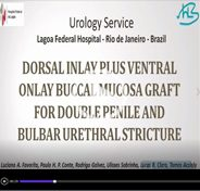 Double inlay plus ventral onlay buccal mucosa graft for simultaneous penile and bulbar urethral stricture