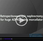 Retroperitoneoscopic nephrectomy for huge autosomal-dominant polycystic kidney disease using morcellator