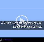 A martius flap in the treatment of iatrogenic distal urogenital fistula