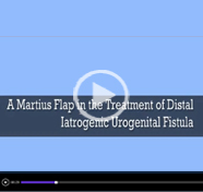 A martius flap in the treatment of iatrogenic distal urogenital fistula