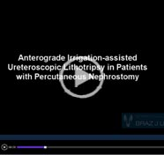 Anterograde irrigation – assisted ureteroscopic lithotripsy in patients with percutaneous nephrostomy