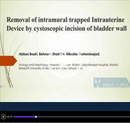 Removal of intramural trapped intrauterine device by cystoscopic incision of bladder wall