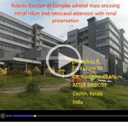 Robotic excision of complex adrenal mass with retrocaval extension and encasement of renal hilum with renal preservation