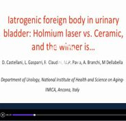 Iatrogenic foreign body in urinary bladder: Holmium laser vs. Ceramic, and the winner is…