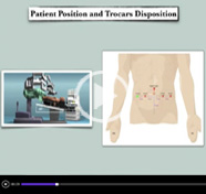 New technologies for old procedures: when Firefly improves robotic bladder diverticulectomy