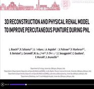 3D Reconstruction and physical renal model to improve percutaneous punture during PNL