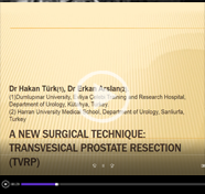 A new Surgical Technique: Transvesical Prostate Resection