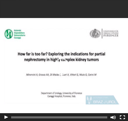 How far is too far? Exploring the indications for robotic partial nephrectomy in a highly complex kidney tumor