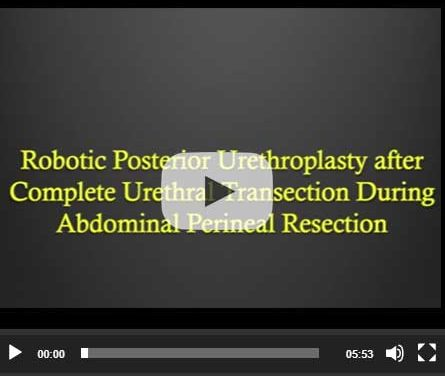 Robotic Posterior Urethroplasty after Complete Urethral Transection During Abdominal Perineal Resection