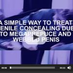 A simple way to treat penile concealing due to webbed penis