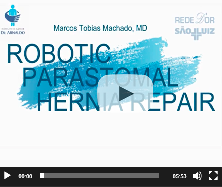 Robotic parastomal hernia repair